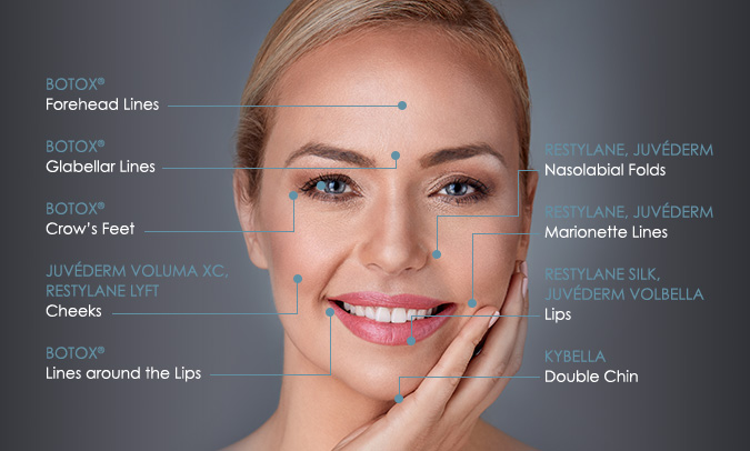Facial diagram showing the different locations and uses for various types of fillers