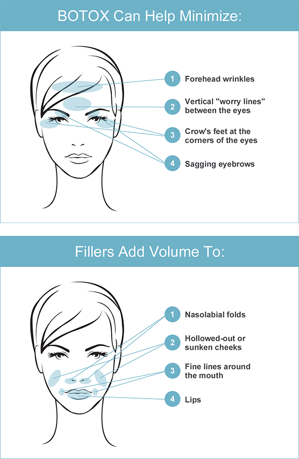 BOTOX and Filler injection locations