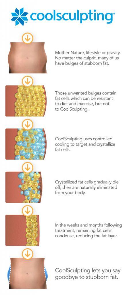 CoolSculpting® diagram