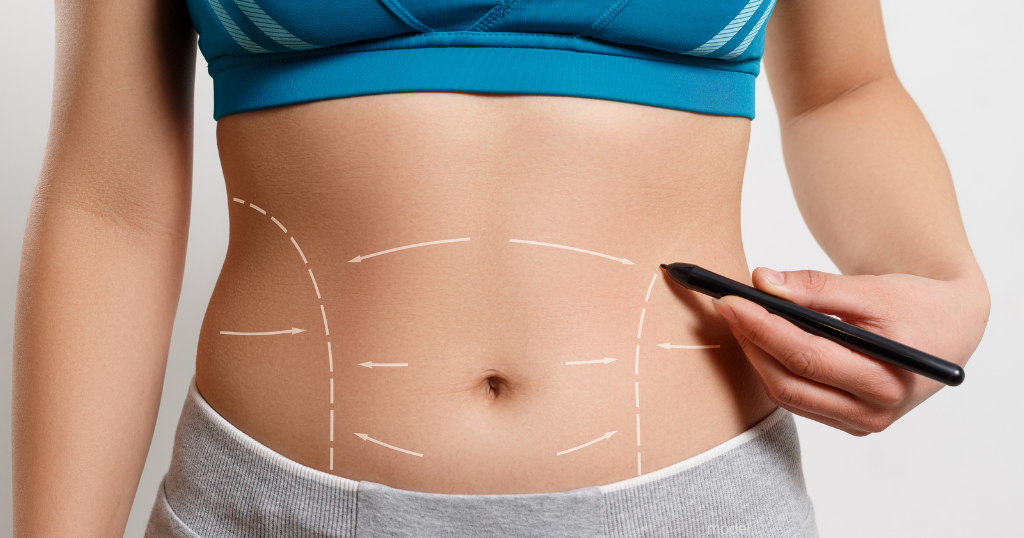 woman drawing lines for tummy tuck on stomach